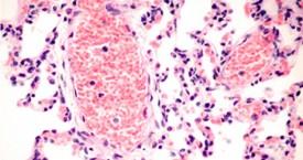 Biopsias y Citologías